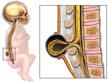 Sacral Spine Stock Photos & Pictures. Royalty Free Sacral ...